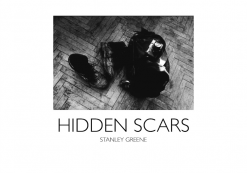Stanley Greene Hidden Scars